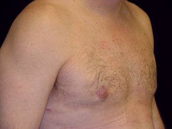 Gynecomastia Reduction Surgery