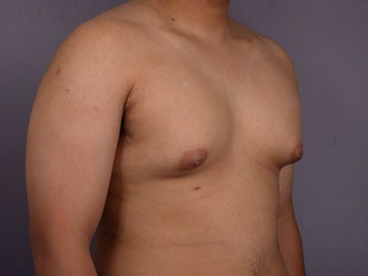 Male Breast Reduction