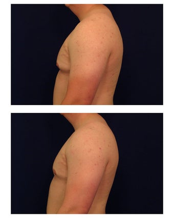Gynecomastia / Male Breast Reduction