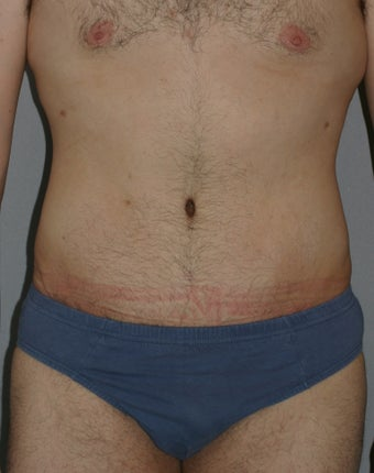 Male Abdominoplasty
