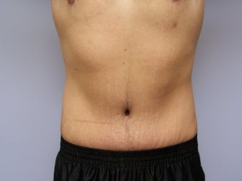 Tummy tuck for a male