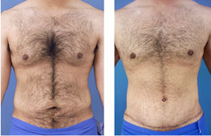 Tummy tuck on a male age 24