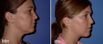 Mesotherapy to chin and jaw line