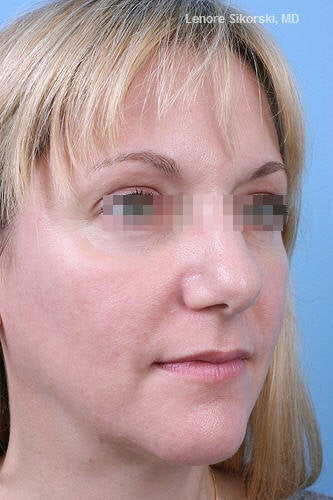 Fractional CO2 Laser Resurfacing