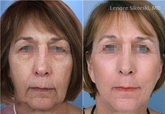 MiXto Laser Fractional Resurfacing - Upper Bleph & Facelift