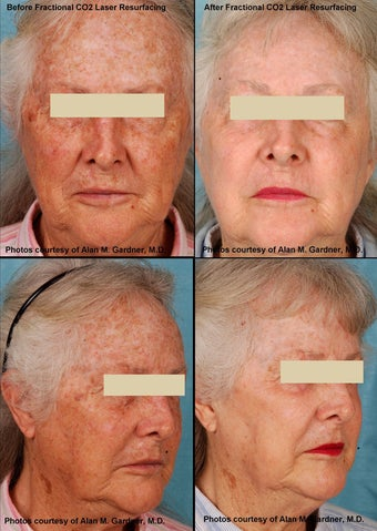 MiXto Laser Resurfacing