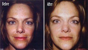 Microderm full face Before and After