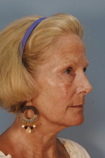 Qt Mini facelift with laser skin resurfacing