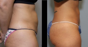 40 year old female- mini tummy tuck