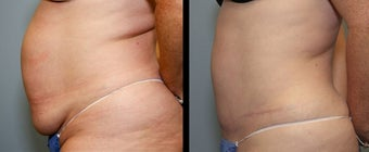 28 year old female- mini tummy tuck