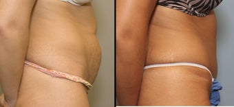 38 year old female with mini tummy tuck