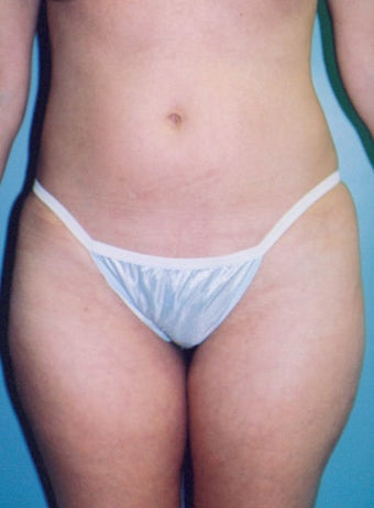Mini-Tummy Tuck with Liposuction