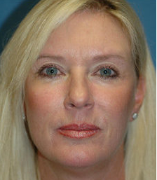 Mini Lift, Eyelid and Brow Lift Surgery