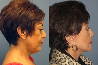 Lite Lift, neck lift, eyelid lift