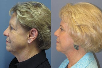 Lite Lift™, brow lift, liposuction of the nec, neck lift, blue peel