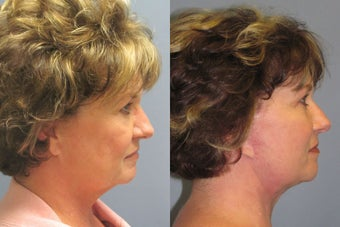 Lite Lift™, neck lift, liposuction of the neck