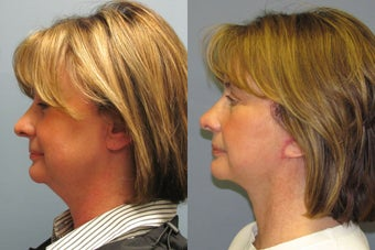 Lite Lift, liposuction of the neck