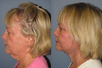 Lite Lift, Liposuction of the neck, eyelid lift