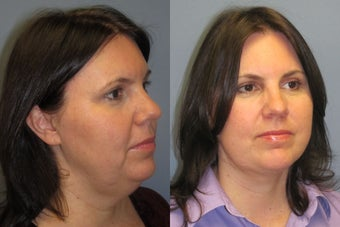 Lite Lift™, liposuction of the neck