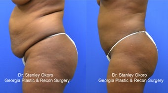 Mini Tummy Tuck