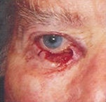 Eyelid skin cancer reconstruction