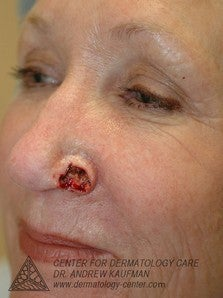 Mohs Surgery of Basal Cell Carcinoma and Recontruction