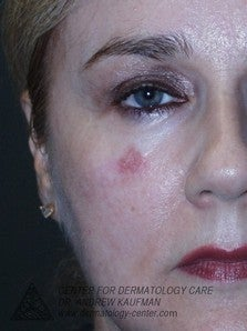 Mohs Surgery of Lentigo Maligna (Melanoma) and Reconstruction