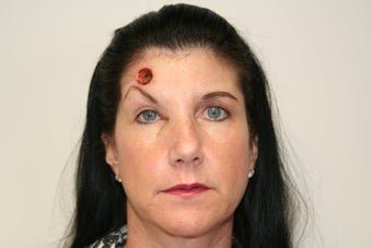 Forehead reconstruction after MOHS surgery and Left Brow Lift For Symmetry