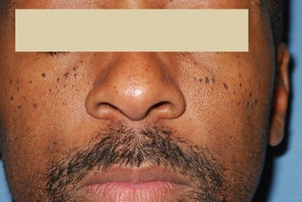 Removing facial moles