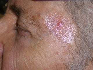 Basal Cell Carcinomas Excisions