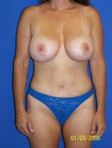 Tummy Tuck and Augmentation Surgery
