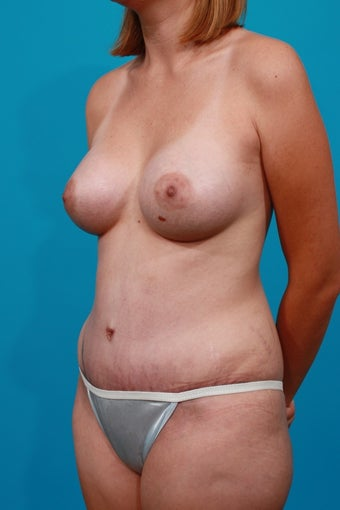 Mommy Makeover - Breast Augmenation and Tummy Tuck