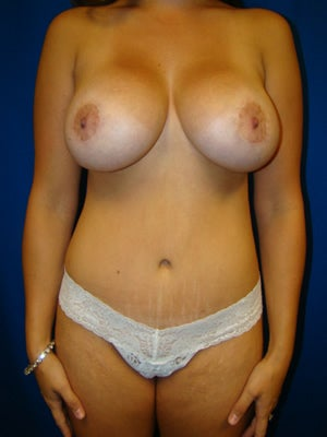 Tummy Tuck Surgery (abdominoplasty) with Breast Augmentation