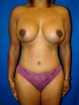 Extended Tummy Tuck with Breast Lift and Implants