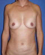 Abdominoplasty and Breast Augmentation Surgery