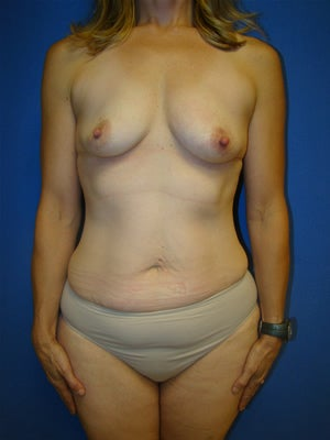 Extended Tummy Tuck (abdominoplasty) with Breast Augmentation Surgery