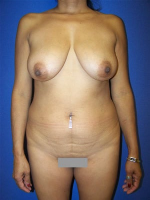 Tummy Tuck, Breast Augmentation, with Breast Lift