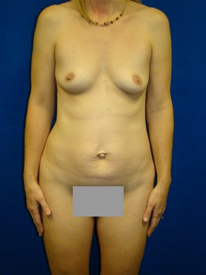 Tummy Tuck with Breast Augmentation Surgery