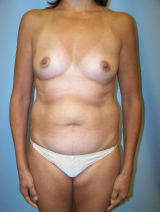 Tummy Tuck Surgery (abdominoplasty) and Breast Implants