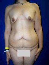 Extended Tummy Tuck Surgery. Breast Lift with Implants