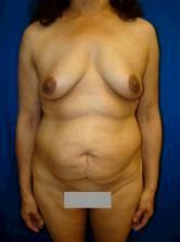 Extended Tummy Tuck and Breast Implants
