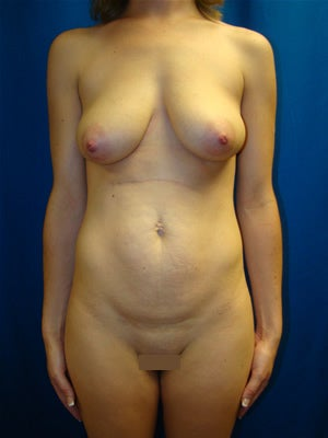 Tummy Tuck Surgery (Abdominoplasty), Breast Lift with Implants