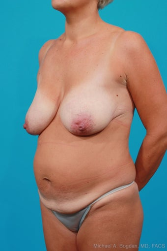 Mommy Makeover: Breast Lift & Extended Abdominoplasty