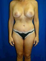 Breast Augmentation and Abdominoplasty