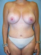 Tummy Tuck (Abdominoplasty), Breast Augmentation, Mommy Makeover
