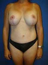 Mommy Makeover, Breast Lift with Implants, Tummy Tuck (Abdominoplasty)