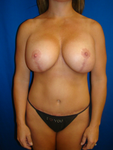 Belly Buttons, Liposuction, Tummy Tuck (Abdominoplasty), Breast Lift with Implants, Mommy Makeover