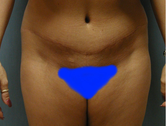 Mommy Makeover- Tummy Tuck and Breast Augmentation