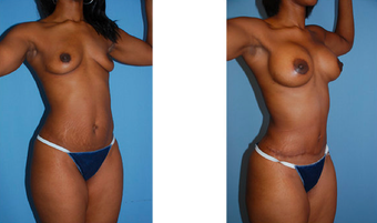 Tummy tuck, breast lift, breast implants, liposuction