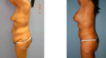 Tummy tuck, breast lift and implants, liposuction